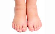 Mast naoteklé nohy