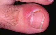 Zánět palce unohy