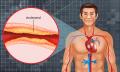 Cholesterol - hodnoty vtabulce podle věku