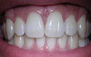 Zubní plak