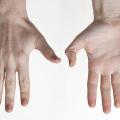 Svědění dlaní